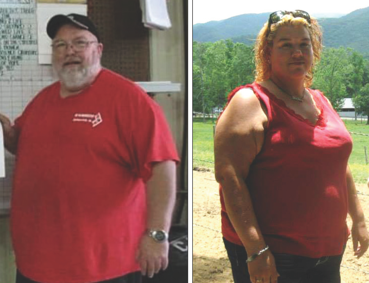 Dwayne and Allenna Lingers before bariatric surgery